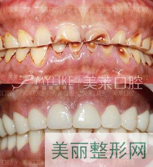 深圳美莱口腔修复案例