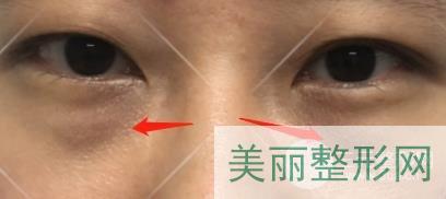 深圳人民医院整形科于丽案例