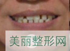 哈尔滨诺优诺博士口腔案例