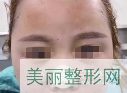 郑大五附院徐扬阳丰脸案例