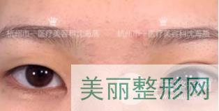 杭州市一院沈海燕双眼皮