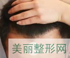 武汉雍禾植发案例