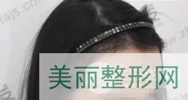 武汉新生植发案例