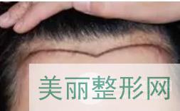 武汉五洲植发案例