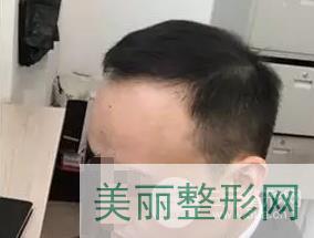 北京科发源李兴东案例