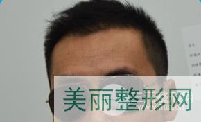 北京雍禾李建新案例