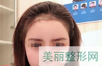 北京碧莲盛陈彪案例