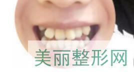 上海伊尔意正畸案例