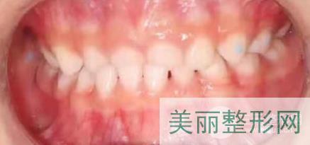 上海圣贝口腔正畸案例
