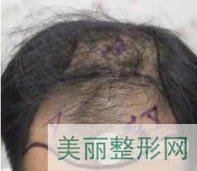 重庆新生毛发医院案例