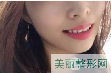 上海九院正畸案例