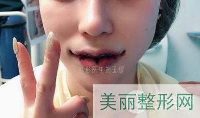 刘玉辉M唇案例