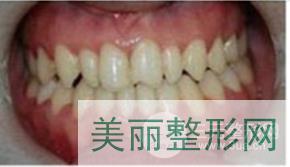 天津中诺口腔矫正案例