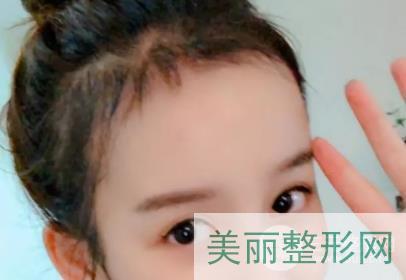 重庆碧莲盛发际植发