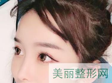 重庆碧莲盛植发案例