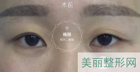 郑州杨丽双眼皮案例