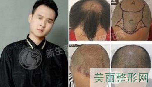重庆新生植发医院案例