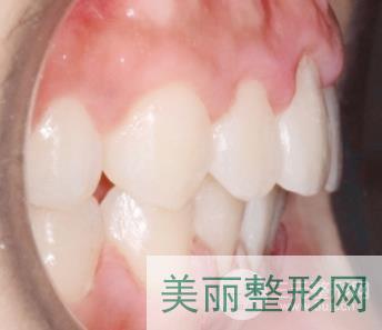 成都亚非牙齿矫正案例