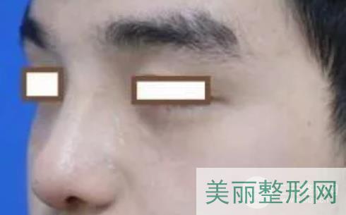 武汉三院鼻整形案例