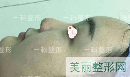 张洪波鼻部案例