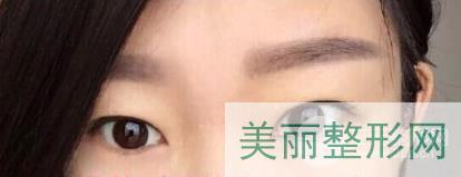 沧州中心医院整形科马超双眼皮案例