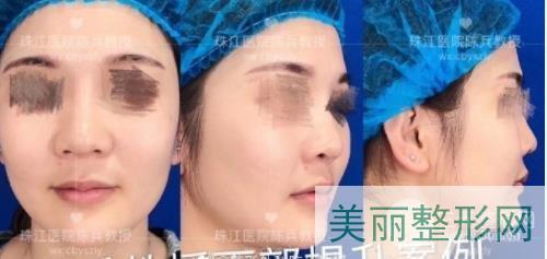珠江医院整形科陈兵面部拉皮案例