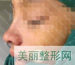 武汉人民医院整形科朱占永隆鼻案例