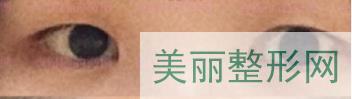 深圳北大整形科双眼皮案例
