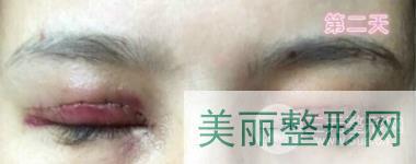 郑大五附院徐琳双眼皮案例
