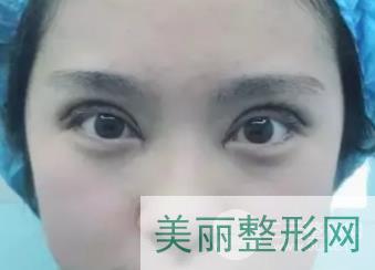 禾丽整形医院双眼皮案例