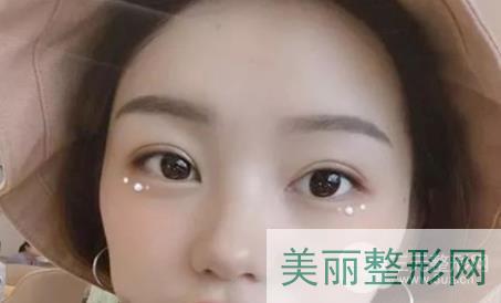 济南艺兴整形医院双眼皮案例