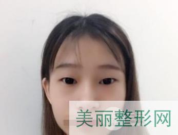 上海美联臣双眼皮案例
