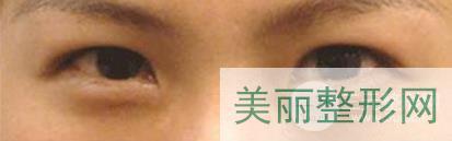 北大人民医院双眼皮专家推jian