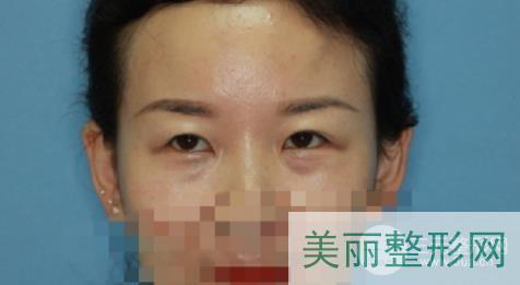 东方医院整形科双眼皮半年恢复效果