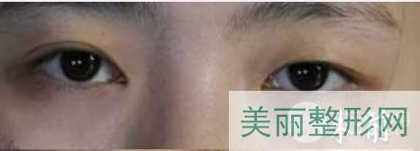 北京同仁医院整形美容中心怎么样