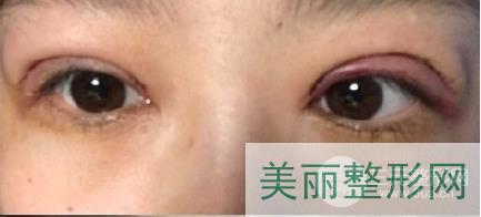 中关村医院双眼皮案例