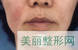 中关村皮肤美容科怎么样