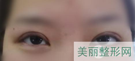 上海仁济医院双眼皮案例