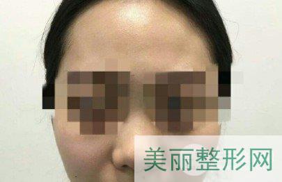 西安交大一附院鼻整形外科案例