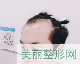 福州碧莲盛植发