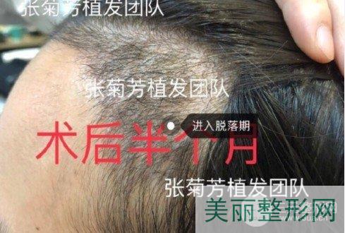 植发后会稀疏留疤吗