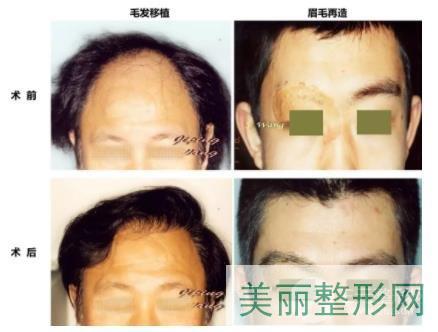 北京专门做植发的公立医院