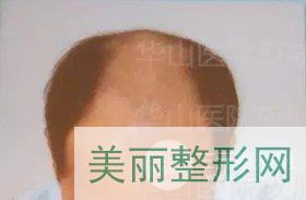 吴文育植发案例