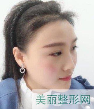 北京女性植发案例参考