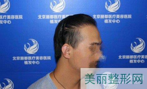北京丽都植发案例