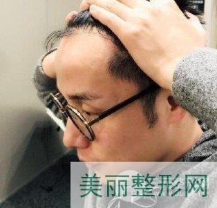 雄脱能植发吗