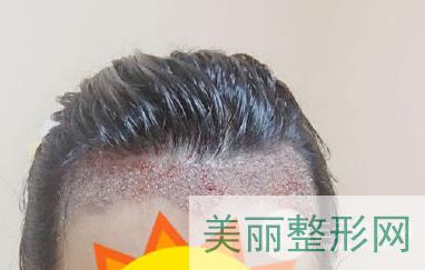 杭州三院皮肤科植发案例