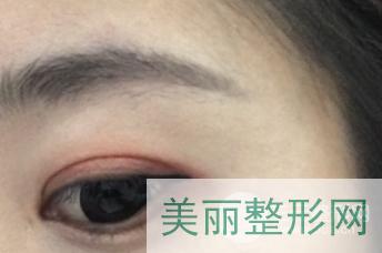 武汉三医院美容科项目