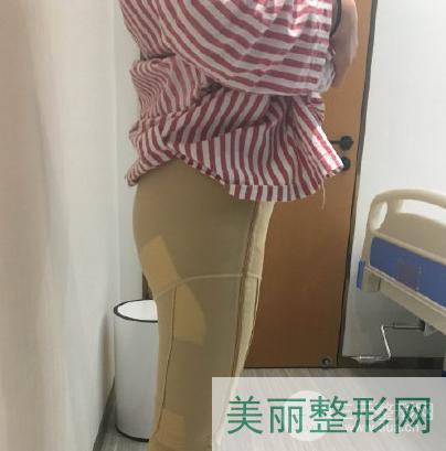 武汉二医院美容科价格表