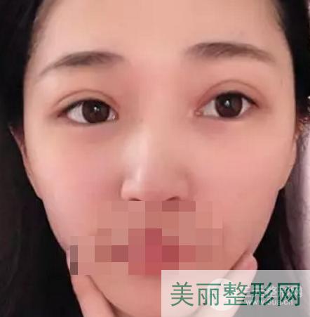 南京军区总医院割双眼皮好吗